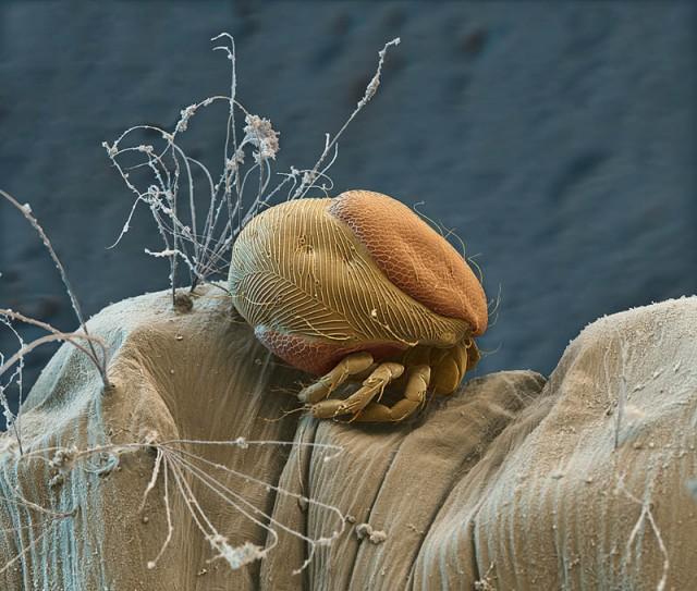 Elektronmikroszkópos fotó - Élősködő atka a szúnyog lárván