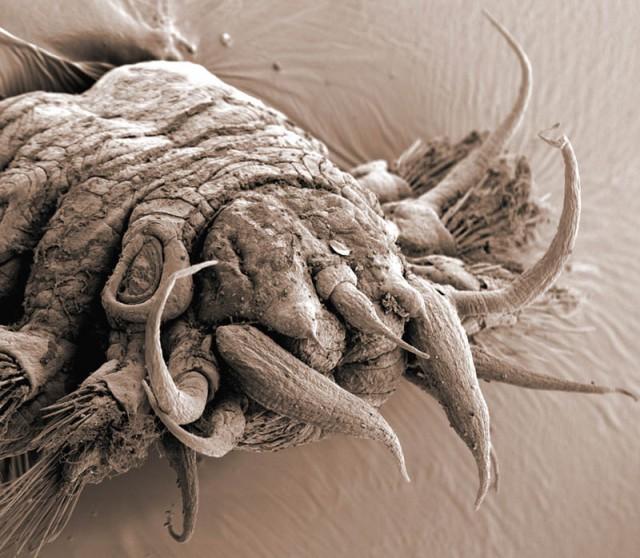 Elektronmikroszkópos fotó - Polychaete (soksertéjű) féreg